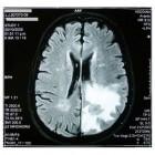 Hersentumor: symptomen, behandeling en levensverwachting