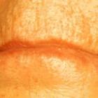 Rimpels: verwijderen van rimpels bovenlip en onder de ogen