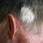 Poliosis circumscripta: witte pluk haar op het hoofd