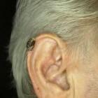 Cornu cutaneum (huidhoorn): symptomen, oorzaak & behandeling