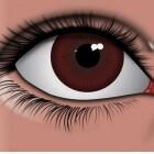 Oogaandoening: Zwelling van het ooglid (Chalazion)