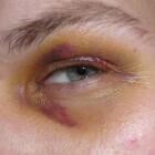Blauw oog: symptomen, oorzaken en behandeling blauwe plek