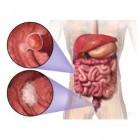 Darmkanker: oorzaak en behandeling tumoren van de dikke darm