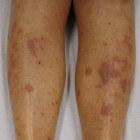 Lichen planus: rode, hevig jeukende bultjes op de huid