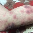 Nummulair eczeem: rode schilferige vlekken - behandeling