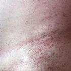 Angiokeratomen: rood-paarse verharde bultjes scrotum & vulva