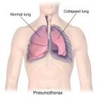 Klaplong: symptomen, behandeling en herstel (pneumothorax)