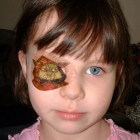 Lui oog: symptomen baby, kind, volwassenen + behandeling