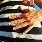 Maag-darmzweer: klachten en behandeling