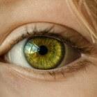 Erfelijke aandoening: Ectodermale Dysplasie (E.D.)
