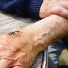 Ontsierende en pijnlijke spataderen