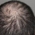 Priorin: middel bij haaruitval en dun haar