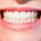 Wittere tanden zonder te bleken of facings aan te brengen