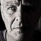 Rimpels: Oorzaken en behandelingen van lijntjes in huid