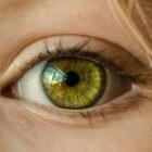 Donkere kringen onder de ogen: verwijderen en behandelen