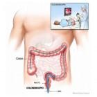 Darmonderzoek (coloscopie): wat is het en wat houdt het in?