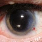 Multifocale en trifocale lensimplantatie