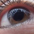 Fotodynamische laserbehandeling van het oog met Visudyne