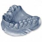 Afdruk maken van het gebit bij de tandarts