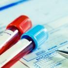 Schildklierwaarden: TSH, T3 & T4, normaal, te hoog & te laag