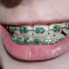Witte vlekken op tanden na het dragen van een beugel