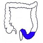 Sigmoïd (colon sigmoideum): anatomie, functie en locatie