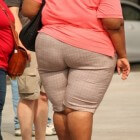 Overwegingen maagoperatie bij overgewicht