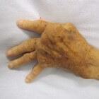 Artritis: voedsel als medicijn