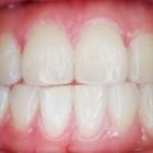 Witte tanden nabootsen doen mannen zo!