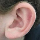 Eenvoudige tips tegen oorpijn
