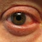 Ogentroost: helpt bij rode en branderige ogen