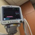 Hartonderzoek met behulp van een ECG