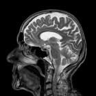 Wat is het Wernicke-Korsakoff syndroom?