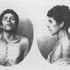 Syndroom van Noonan: symptomen en behandeling