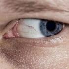 Cutis laxa: extreem slappe huid door erfelijke aandoening