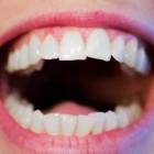 Droge mond & Oorzaken en behandeling