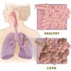 Longziekte COPD: Chronic Obstructive Pulmonary Disease