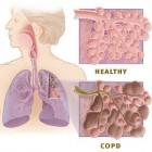 Longziekte COPD: Chronic Obstructive Pulmonary Disease