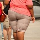 Ernstig overgewicht: morbide obesitas