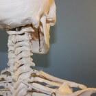 Belangrijke feiten over artrose op een rijtje