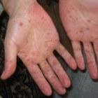 Hand-, voet- en mondziekte bij volwassenen