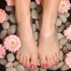 Last van opgezette, dikke voeten