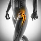 Heupartrose en een totale heupprothese