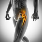 Single leg squat - Indicatie voor zwakte van heupspieren