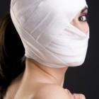 Behandel zelf acne littekens in vier simpele stappen