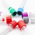 Virus verwant aan de ziekte van Pfeiffer
