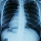 Longontsteking of pneumonie: soorten, symptomen & vaccinatie