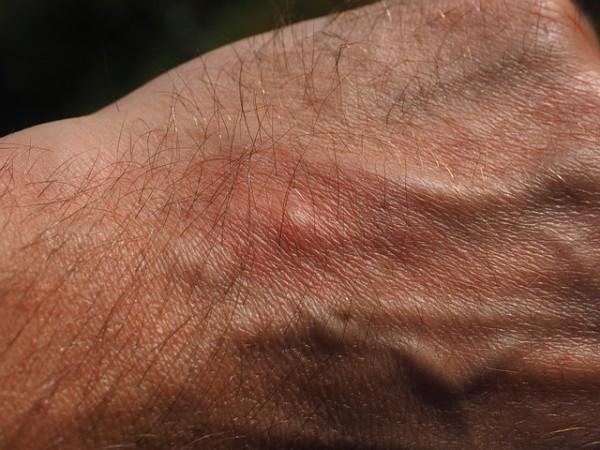 Muggen in de slaapkamer: muggenbeten voorkomen en behandelen   Mens ...