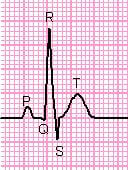 Ecg / Bron: Sampo, Wikimedia Commons (CC BY-SA-3.0)
