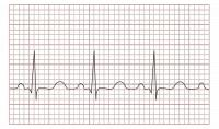 ECG / Bron: Madhero88, Wikimedia Commons (CC BY-SA-3.0)